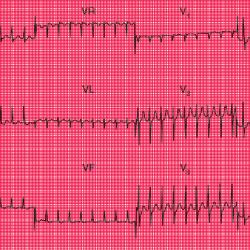 ECG Problem # 6