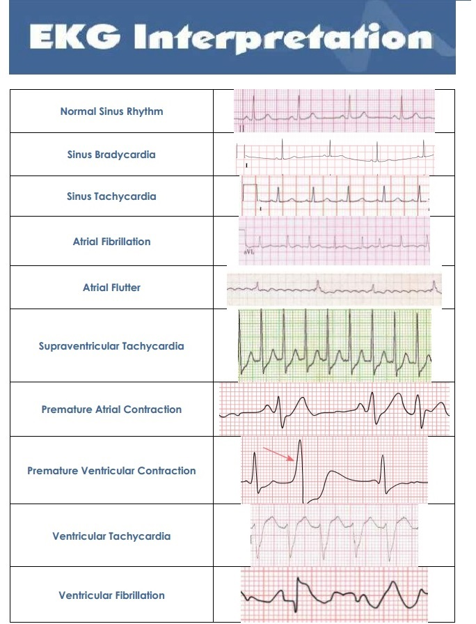 Heart arrhythmia rhythm strip readings