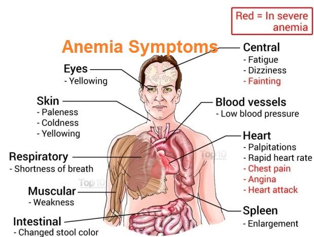 anemia-symptoms
