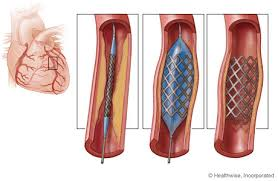 Absorb able Stent
