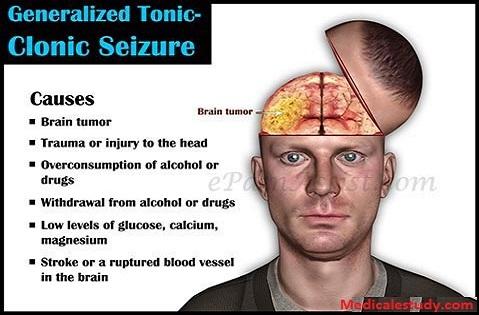 tonicclonic seizure