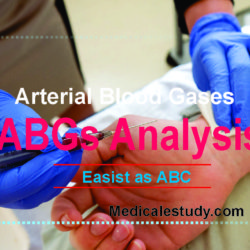 abg-analysis