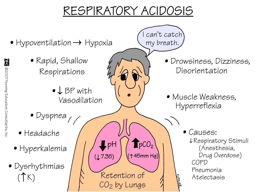 acidoses-1