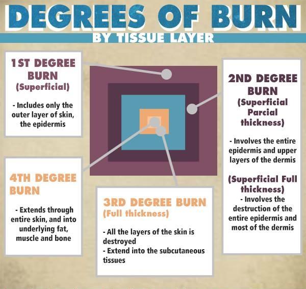 burns-degrees