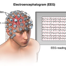 Oblique view of male head showing electrode placement on the scalp for an EEG (Electroencephalogram); SOURCE: Original; M_Brain_skull_EEG.mb