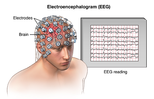 Image result for EEG