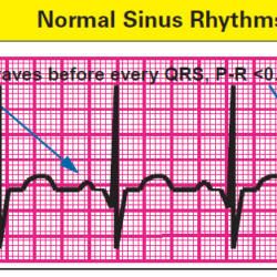 normal-sinus-rhythms