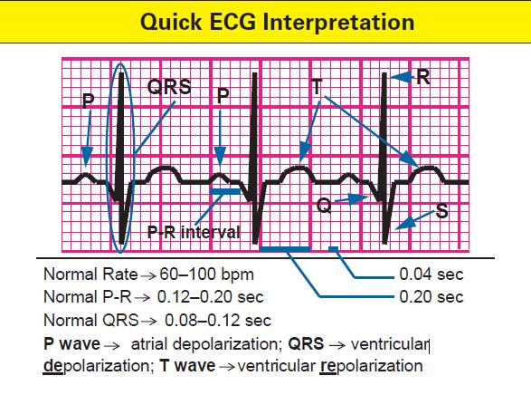 quick-ecg-interpretation