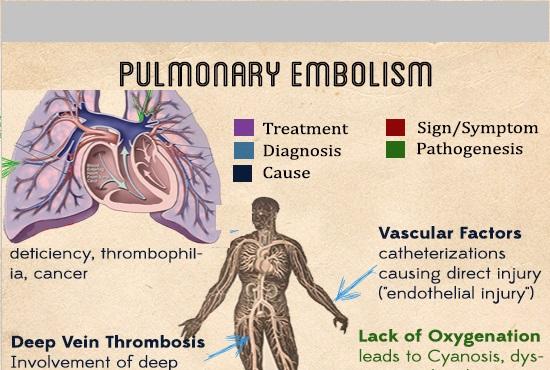 Pulmonary Embolism Sign And Symptoms