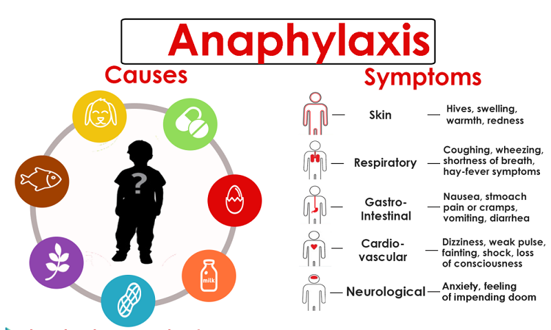 anaphylaxis-sing-and-symptoms