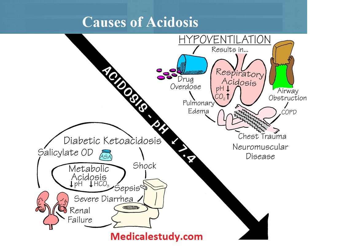 causes-of-acidosis