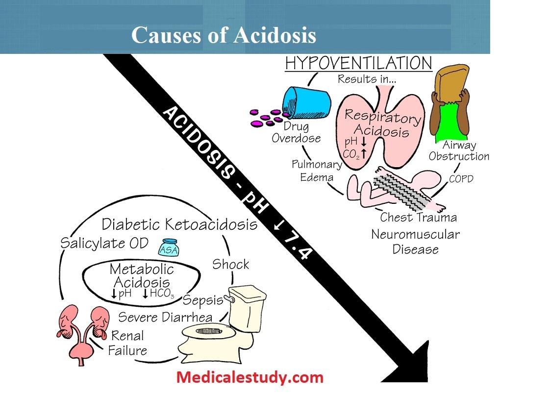 causes-of-acidosis