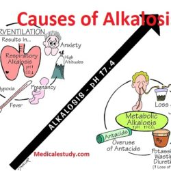 causes-of-alkalosis