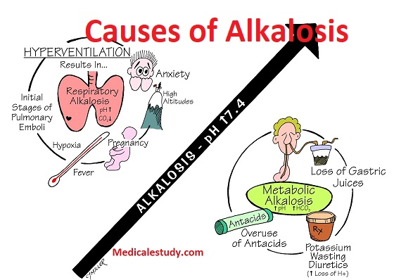 Alkalosis Is Excessive Blood Alkalinity Caused By An Overabundance Of Bicarbonate In The Or A Loss Acid From Metabolic