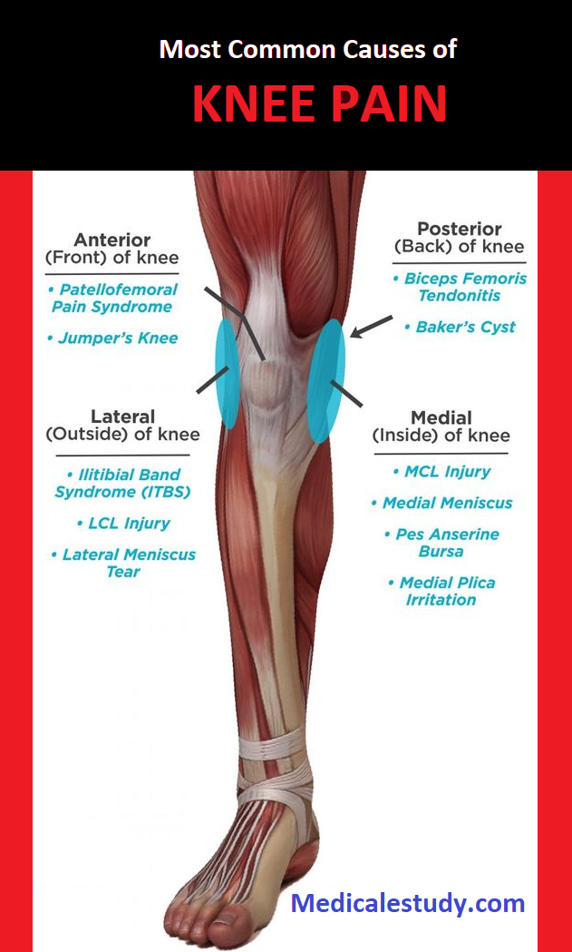 Most Common Causes of Knee Pain - Medical eStudy