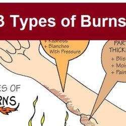 types-of-burns