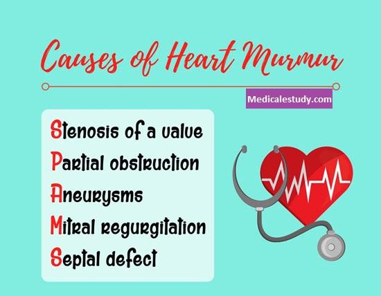 heart-murmur-nursing-mnemonics
