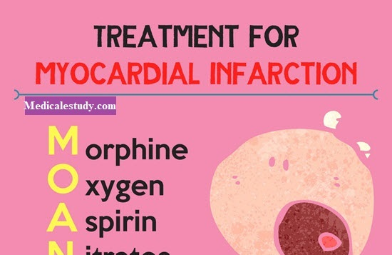 myocardial-infraction-nursing-mnemonics