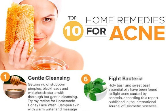 acne-home-remedies