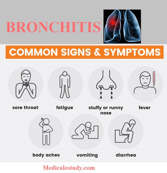 bronchitis-common-signs-symptoms