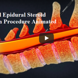 cervical-epidural-steroid-injection