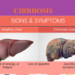cirrhosis-signs-symptoms