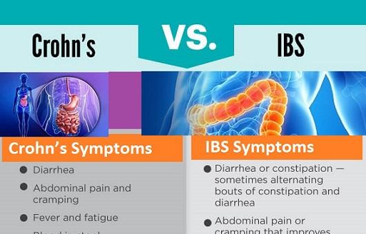 Crohn's Syndrome vs Irritable Bowel Syndrome Causes