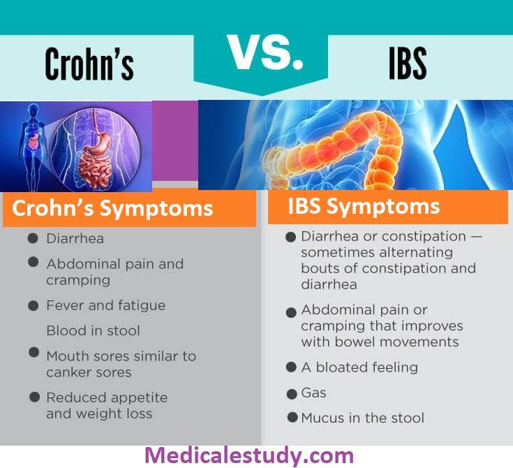 crohns-vs-ibs