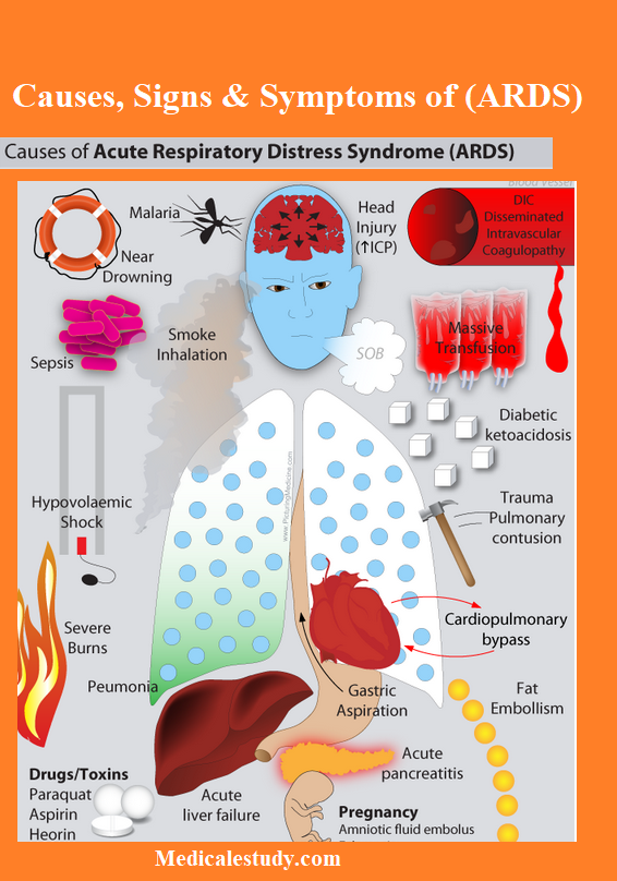 causes-of-ards-1