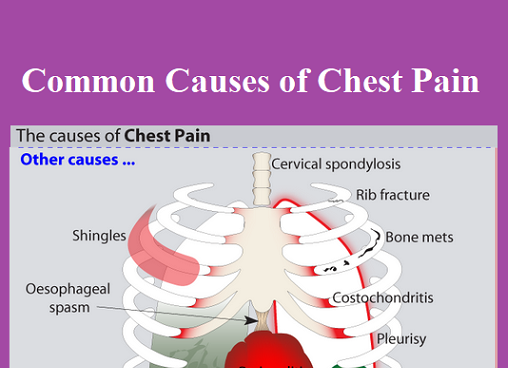 causes-of-cheat-pain