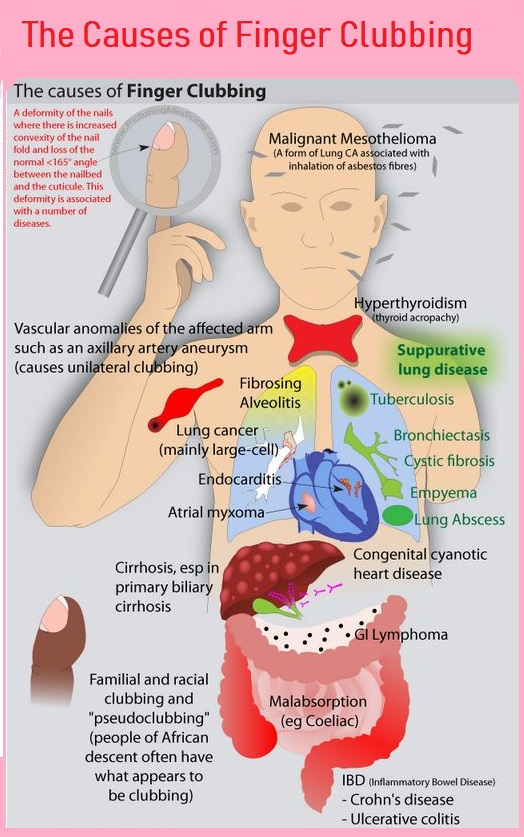 causes-of-finger-clubbing-copy