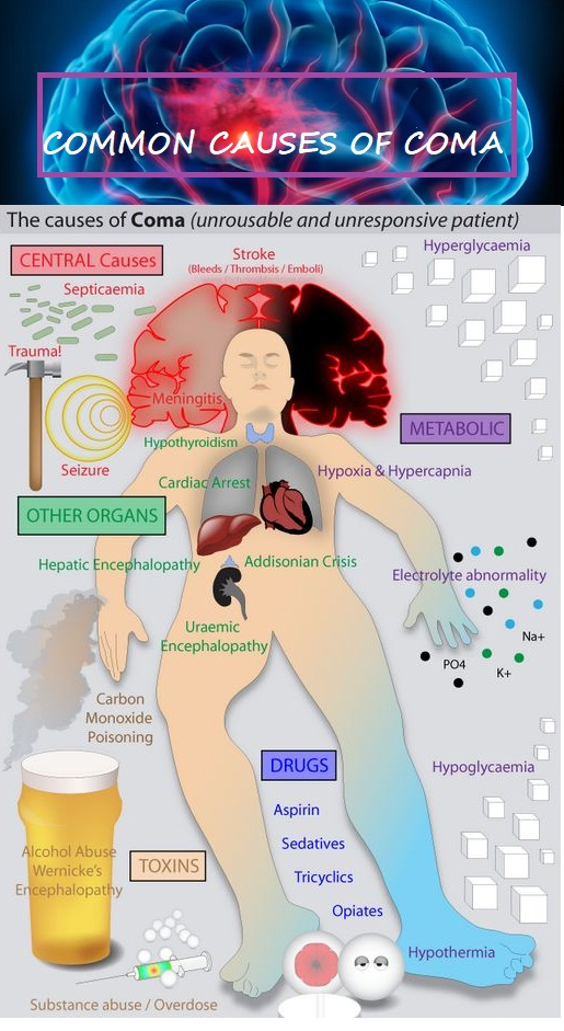 common-causes-of-coma