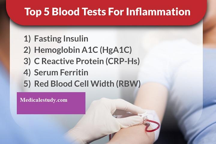 inflammation-blood-test