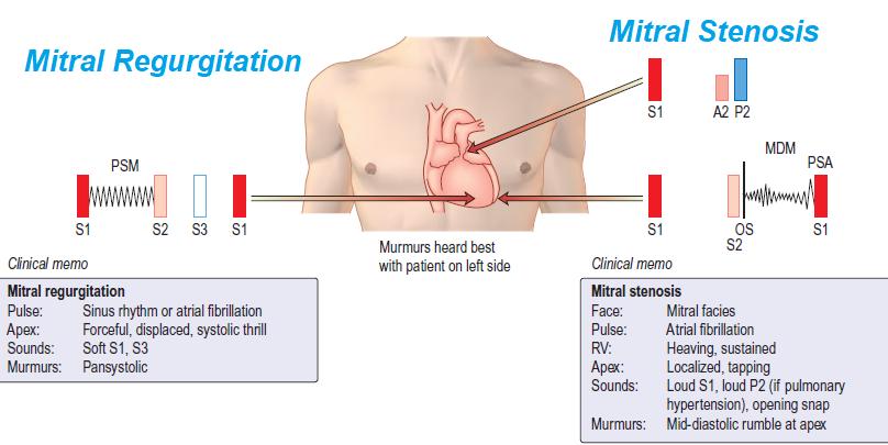 mitral-regurgitation-1