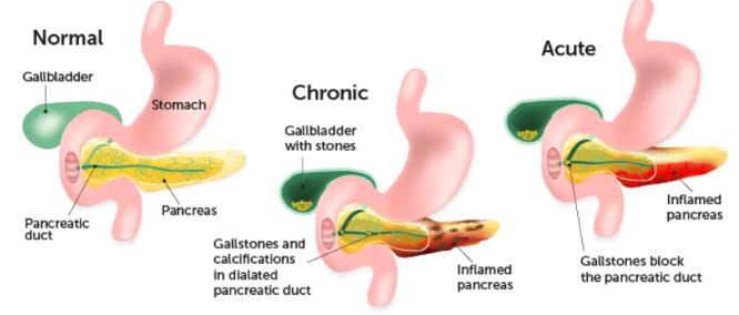 types-of-pancreatitis