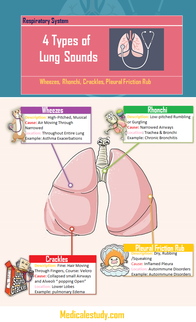 Types of Lung Sounds